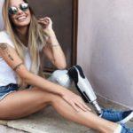 Brazilska manekenka ostala bez noge, ali nije odustala od karijere i danas je inspiracija mnogima