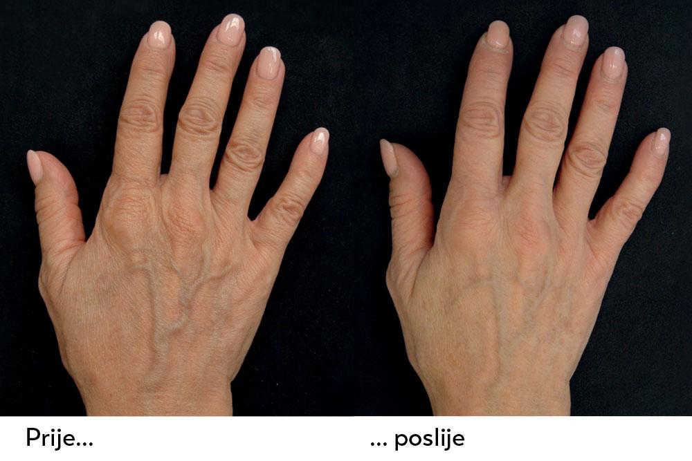 zatezanje kože